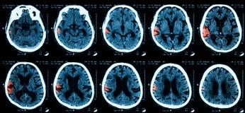 Exploración del CT del brainn Foto de archivo