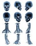 Exploración del CT y x28; Tomografía computada y x29; con el cráneo humano normal de la demostración gráfica 3D y la espina dorsa Fotografía de archivo