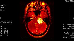 Exploración del mri del cerebro del hombre de la vida real con la animación común del reseach del neoplasma del tumor de la nueva almacen de video