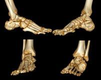 Exploración del pie humano ilustración del vector