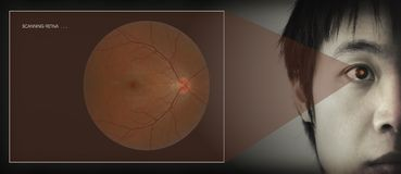 Exploración retiniana fotografía de archivo libre de regalías