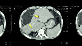 Exploración del CT del abdomen superior: muestre la masa anormal en el hígado (el cáncer de hígado) Fotos de archivo