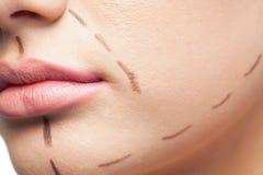 Extrémité étroite sur le patient magnifique présentant les lignes pointillées sur le fa photos stock
