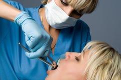 Extracción del diente foto de archivo libre de regalías