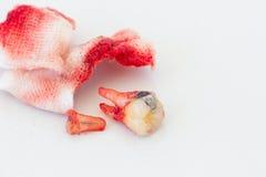 Extracción del diente decaído con el cojín de gasa sangriento en el backg blanco fotos de archivo libres de regalías