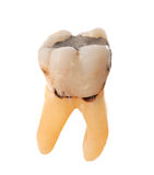 Extracted Tooth Royalty Free Stock Image