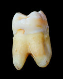 Extracted Wisdom Tooth side view Stock Image