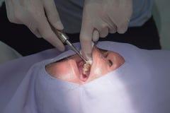 Extraction de dent de carie par le dentiste Dentistry dans l'hôpital images stock