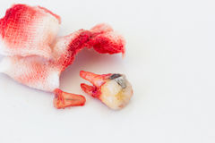 Extraction of decayed tooth with bloody gauze pad on white backg. Round. health concept Royalty Free Stock Photos