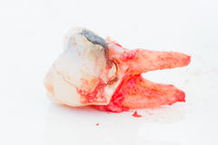 Extraction of decayed tooth on white background. Royalty Free Stock Image