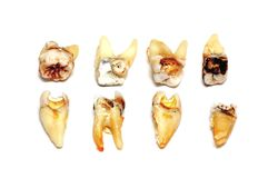 Extrahierte Zähne auf einem weißen Hintergrund lizenzfreies stockbild