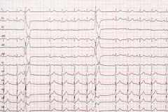 Extrasystole auf 12 Führungs-Elektrokardiogramm-Papier Lizenzfreies Stockfoto