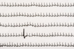 Extrasystole On Electrocardiogram Stock Photos