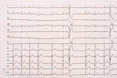 Extrasystole på elektrokardiogrampapper för 12 ledning Fotografering för Bildbyråer