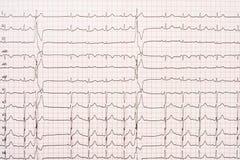 Extrasystole på elektrokardiogrampapper för 12 ledning Royaltyfri Foto