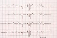 Extrasystole på elektrokardiogrampapper för 12 ledning Arkivbild