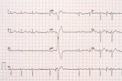 Extrasystole på elektrokardiogrampapper för 12 ledning Arkivbilder