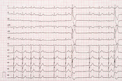 Extrasystole sur le papier d'électrocardiogramme de 12 avances Image stock