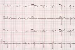 Extrasystole sur le papier d'électrocardiogramme de 12 avances Photographie stock libre de droits