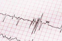 Extrasystoles On Electrocardiogram stock photography