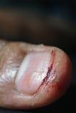 Extrem closeup av såret Royaltyfri Fotografi