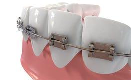 Extrem Closeup för mänskliga tänder med metallhänglsen Royaltyfri Bild