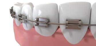 Extrem Closeup för mänskliga tänder med metallhänglsen Arkivbilder