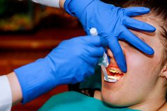 Extreme close up of hands working on dental braces with hatchet and mouth mirror, female mouth showing dental braces. Royalty Free Stock Images