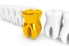 Extreme closeup gold tooth Royalty Free Stock Photography