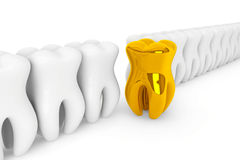 Extreme closeup gold tooth Royalty Free Stock Photo