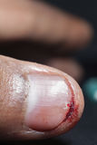 Extreme closeup of wound. Bleeding from the cut finger Royalty Free Stock Image