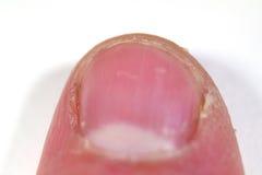 Extreme Nahaufnahme des Fingertipps Lizenzfreies Stockbild