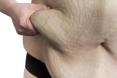 Extreme obesity Royalty Free Stock Image