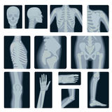 Extreme quality realistic vector collage set of many X-rays shots. X-ray multiple part of adult people. Stock Photos