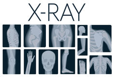Extreme quality realistic vector collage set of many X-rays shots. X-ray multiple part of adult people. Royalty Free Stock Image