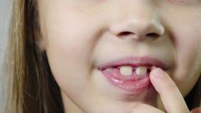 Extremt närbilden av munnen av en gullig le flicka, ett barn som viftar ett finger, mjölkar huggtanden i ett rum med ett vitt lager videofilmer