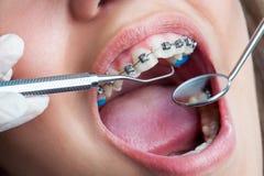 Extremt slut upp av den mänskliga munnen med hänglsen Arkivfoton