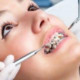 Extremt slut upp av händer som arbetar på tand- hänglsen Arkivfoton