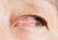 Eye pterygium in old women royalty free stock photo