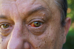Eye, bloodshed to the eye, warts and papilla Royalty Free Stock Photos