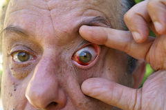 Eye, bloodshed to the eye, warts and papilla Royalty Free Stock Image