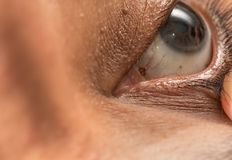 Eye Care Examination by Ophthalmologists. For Eye Injury and Cholesterol Ring royalty free stock photography