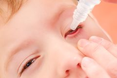 Eye child allergy and conjunctivitis red allergic, ill inflammation royalty free stock photography