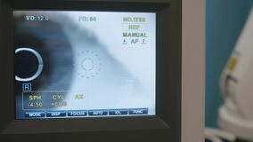 Eye close-up on an ophthalmologist's monitor