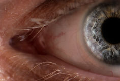 Eye with contact lens. Royalty Free Stock Photos