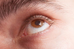 Eye with contact lens macro Royalty Free Stock Photo