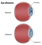 Eye disease - Cataract Royalty Free Stock Photography