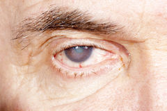 Eye disease Stock Photography