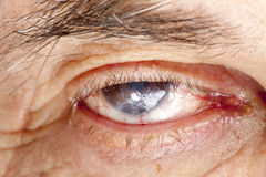 Eye disease Stock Images