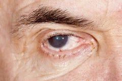 Eye disease. Close up of the senile cataract during eye examination Royalty Free Stock Photos